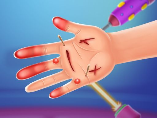 Hand Doctor Game